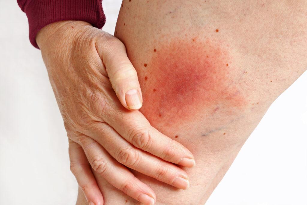 Tick caused Lyme disease on woman leg. redness