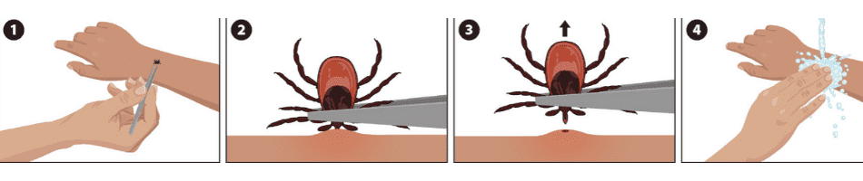 inforgraphic on how to remove a tick